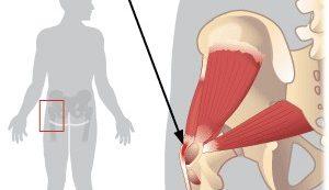 ízületi fájdalmak csípőízületek)