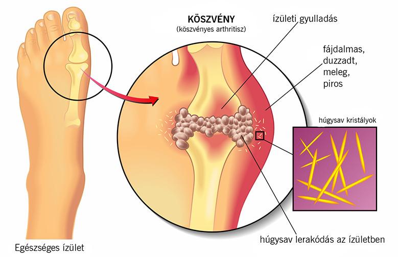 a térdízület készítményeinek osteoarthritisére