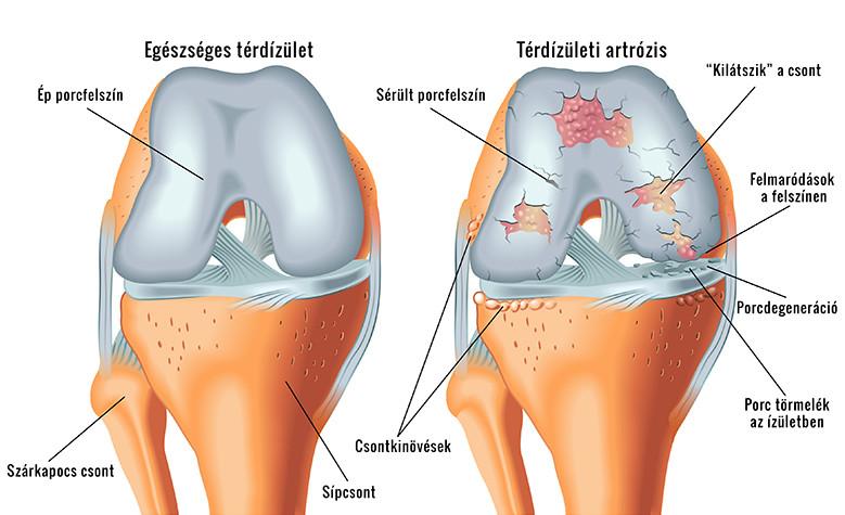 Enyhítse a térdízület kenőcsének fájdalmát, A térdhajlatfájdalom 10 lehetséges oka és kezelésük