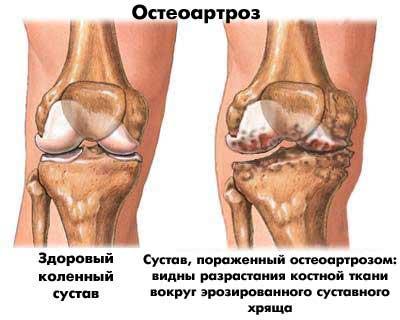 A csípőízület második fokozatának deformáló artrózisa, Artrózis a láb második fokának - Masszázs