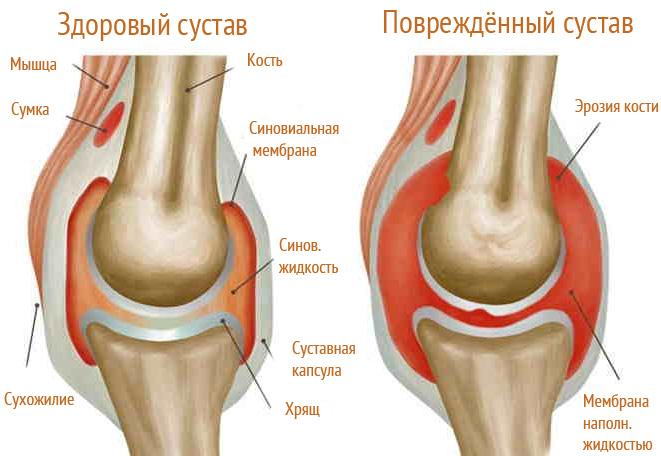 Milyen térdfájdalom, ízületkárosodás - A térdfájás lehetséges leggyakoribb okai