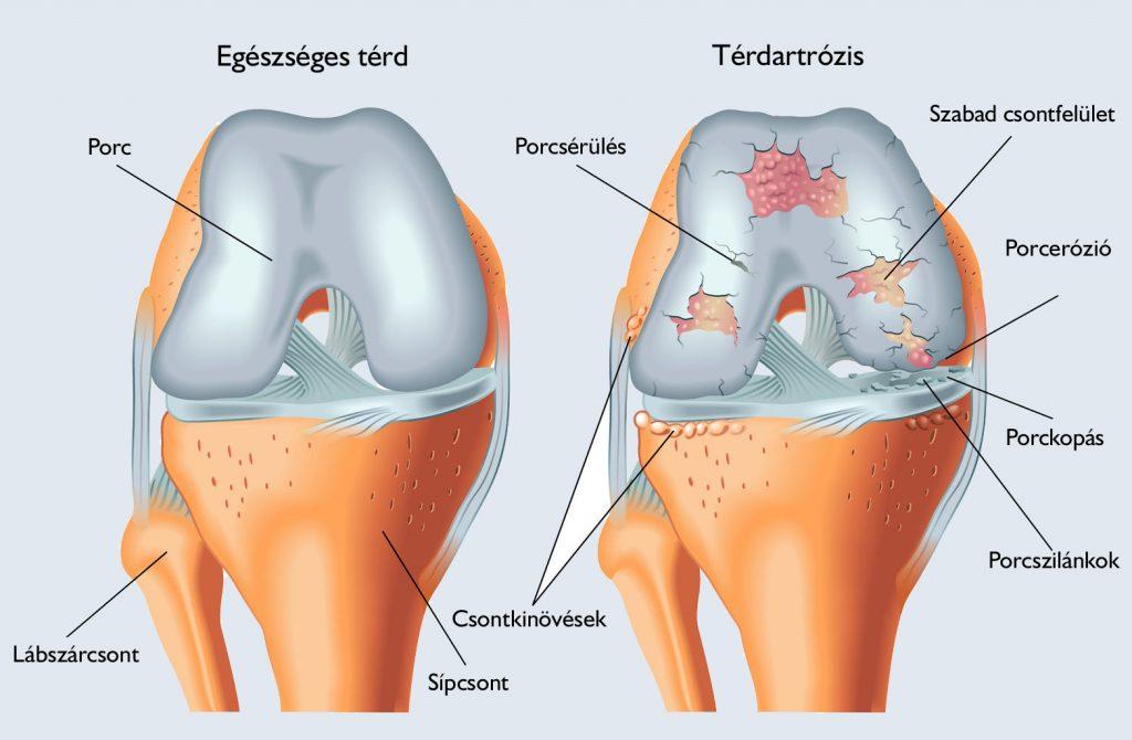 helminthiasis és ízületi fájdalmak térdízület cseréje