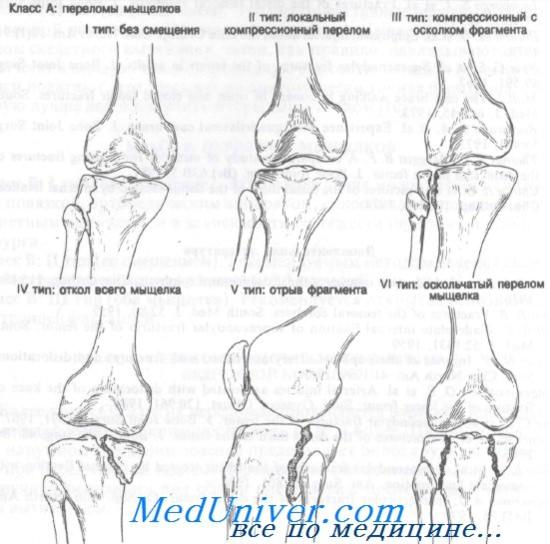 sérülés diszlokációja a csípő tünetei artritisz artrózis kezelő készülék