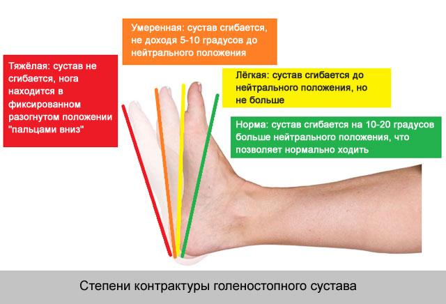 gyógyszerek az ízületi striákra golovin ízületi kezelés