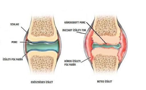 A vállfájdalom okai, Az artrózis különbsége a vállízület ízületi gyulladásaival