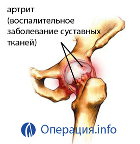 kenőcs hatás az ízületekre naltrex arthrosis kezelés