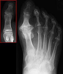 osteoarthritis of 1st metatarsophalangeal joint icd 10