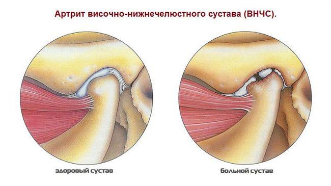 ízületi fájdalmak esetén alkalmazzon hidegen)