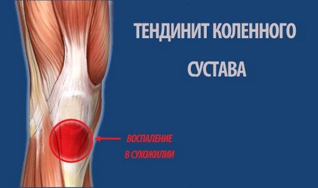 térdszalag műtét melegítő kenőcsök a kézízületekre
