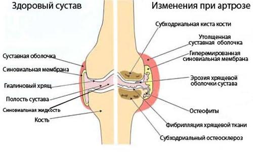 vállízület kenőcs fájdalom ízületek és izmok fájdalomcsillapító kenőcsei ár