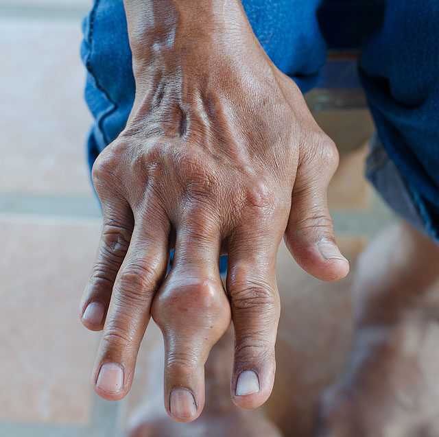 Prostatitis voltaren segített nekem