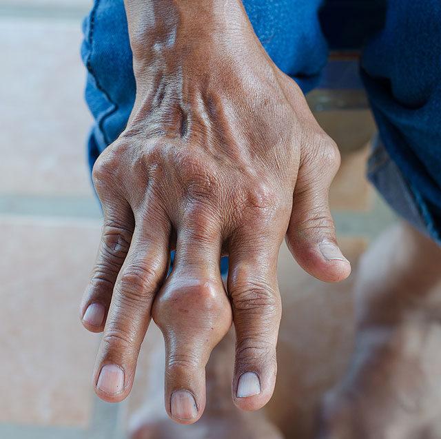 Az arc ízületi gyulladása, Állkapocs fájdalom: okok, tünetek, kezelés