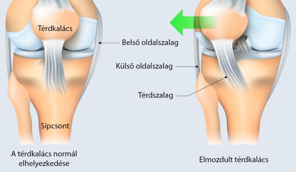 Ízületi gyulladás 1-2 fokos kezelés