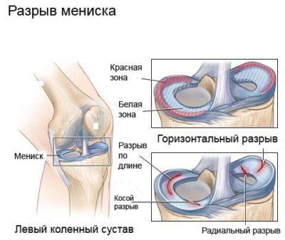 a térd deformáló ízületi kezelése