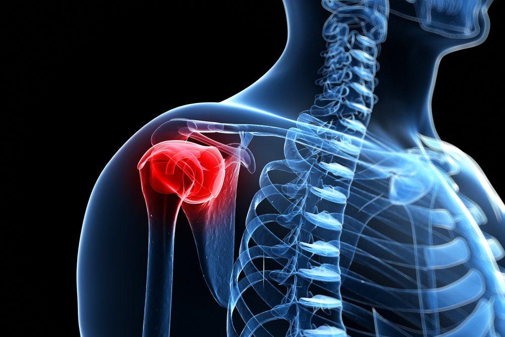 fájó csípőízületek áttekintése rheumatoid arthritis áttekintése hol kell kezelni
