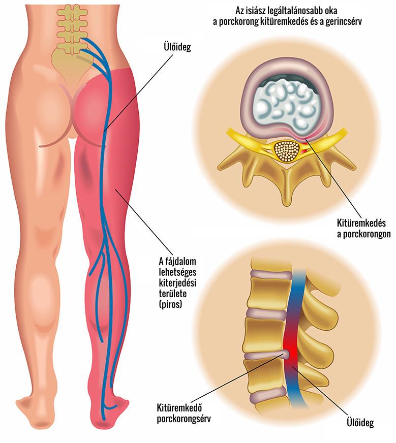 akupunktúra csípőízületi fájdalmak esetén
